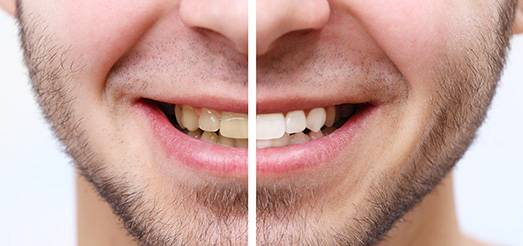 What is the best teeth whitening treatment?