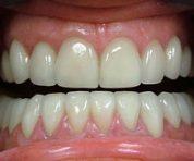 Smile Lift and Rejuvenation Treatment Melbourne