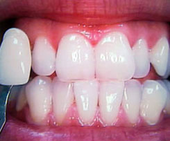 home-teeth-whitening-after