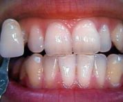 home-teeth-whitening-before