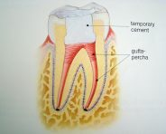 rootcanal_filling_3