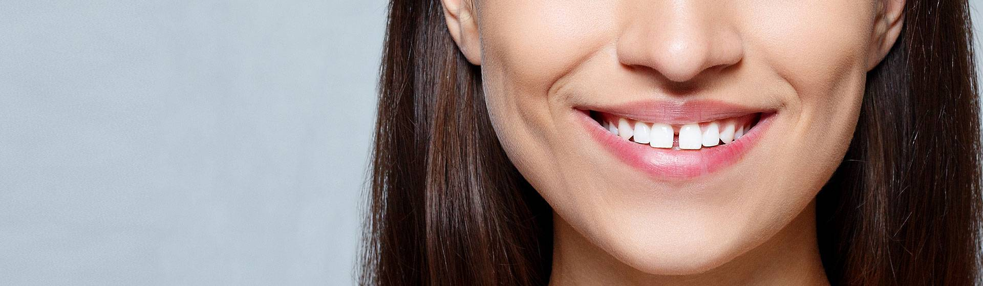Is Closing The Gaps In Your Teeth Worth It?