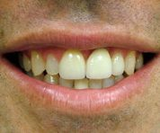 cosmetic-dentist-dentures_after