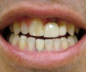 cosmetic-dentist-dentures_before
