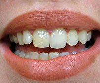 cosmetic-dentist-gum-lift_after