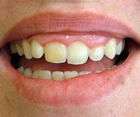 cosmetic-dentist-gum-lift_before